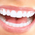 7 Facts About Teeth Whitening You Should Know